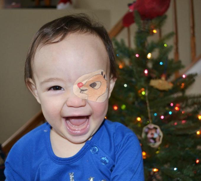 povez za oko 2 Roditeljstvo: Kako navesti dete da lakše podnese lečenje