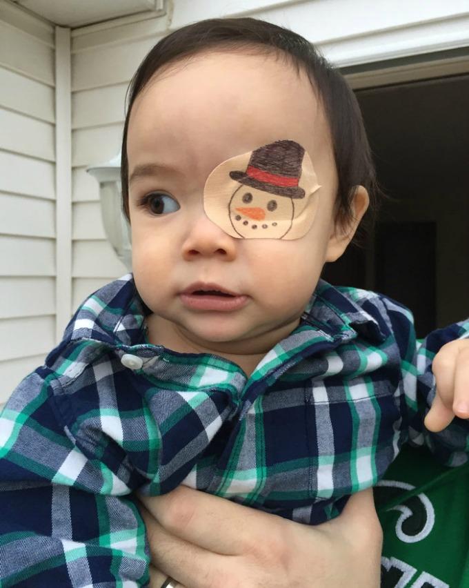 povez za oko 3 Roditeljstvo: Kako navesti dete da lakše podnese lečenje