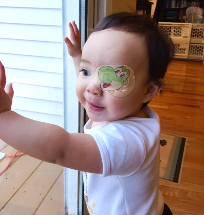 povez za oko 4 Roditeljstvo: Kako navesti dete da lakše podnese lečenje