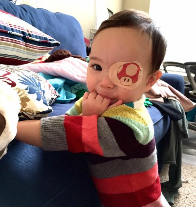povez za oko 6 Roditeljstvo: Kako navesti dete da lakše podnese lečenje