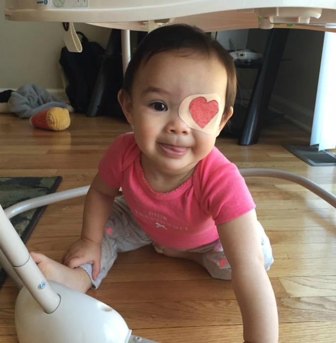povez za oko 7 Roditeljstvo: Kako navesti dete da lakše podnese lečenje